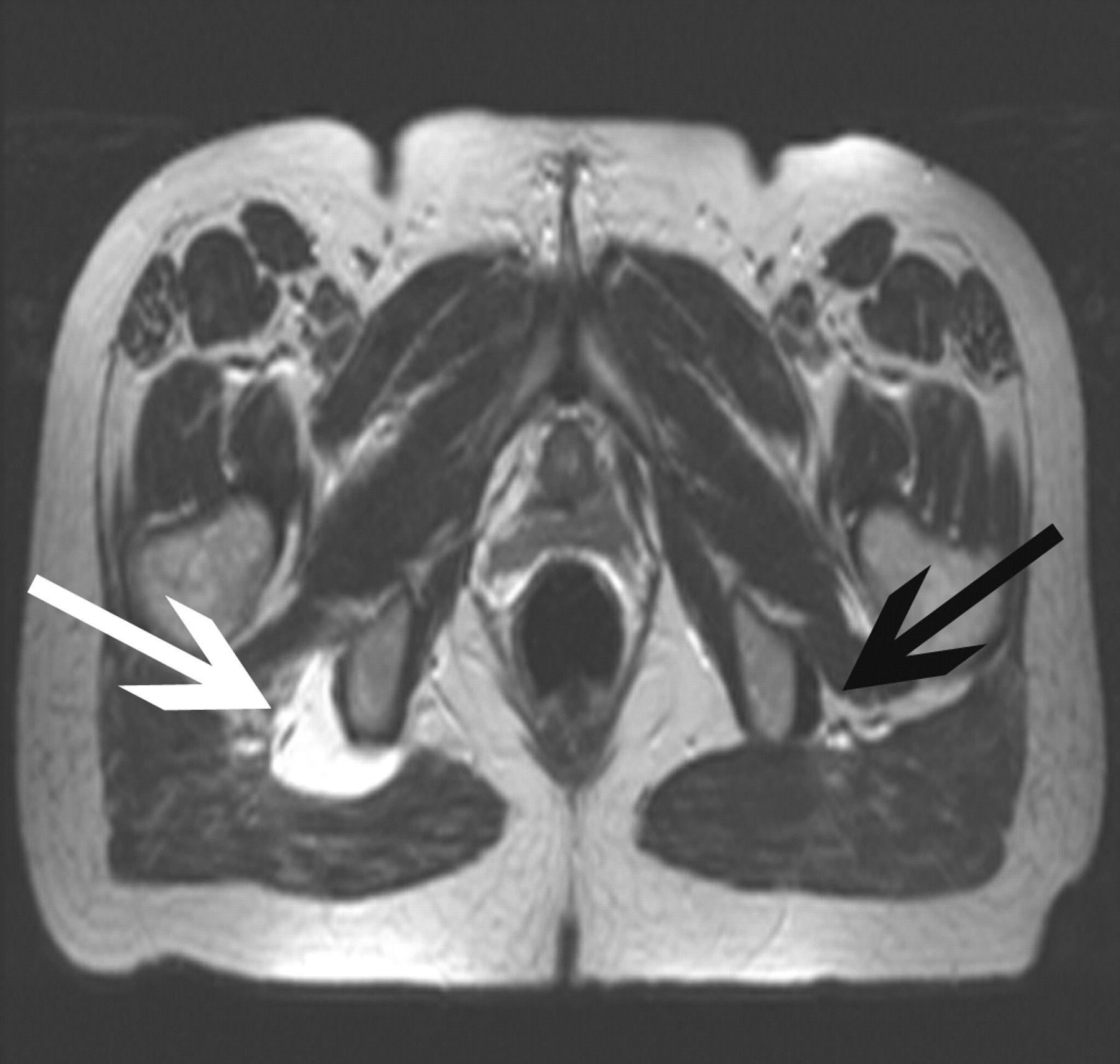 MRI hams avul